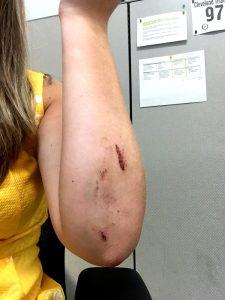 arm-wound